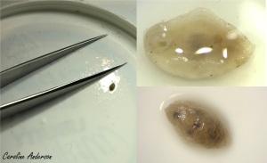 4. Gauche : la sangsue était très petite. Haut à droite : vue ventrale. Bas à droite : vue dorsale.