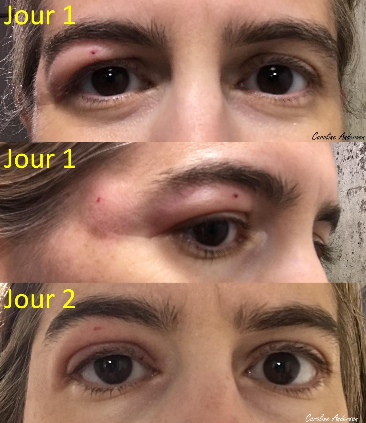 Piqure_Simuliidae_Jour1-2