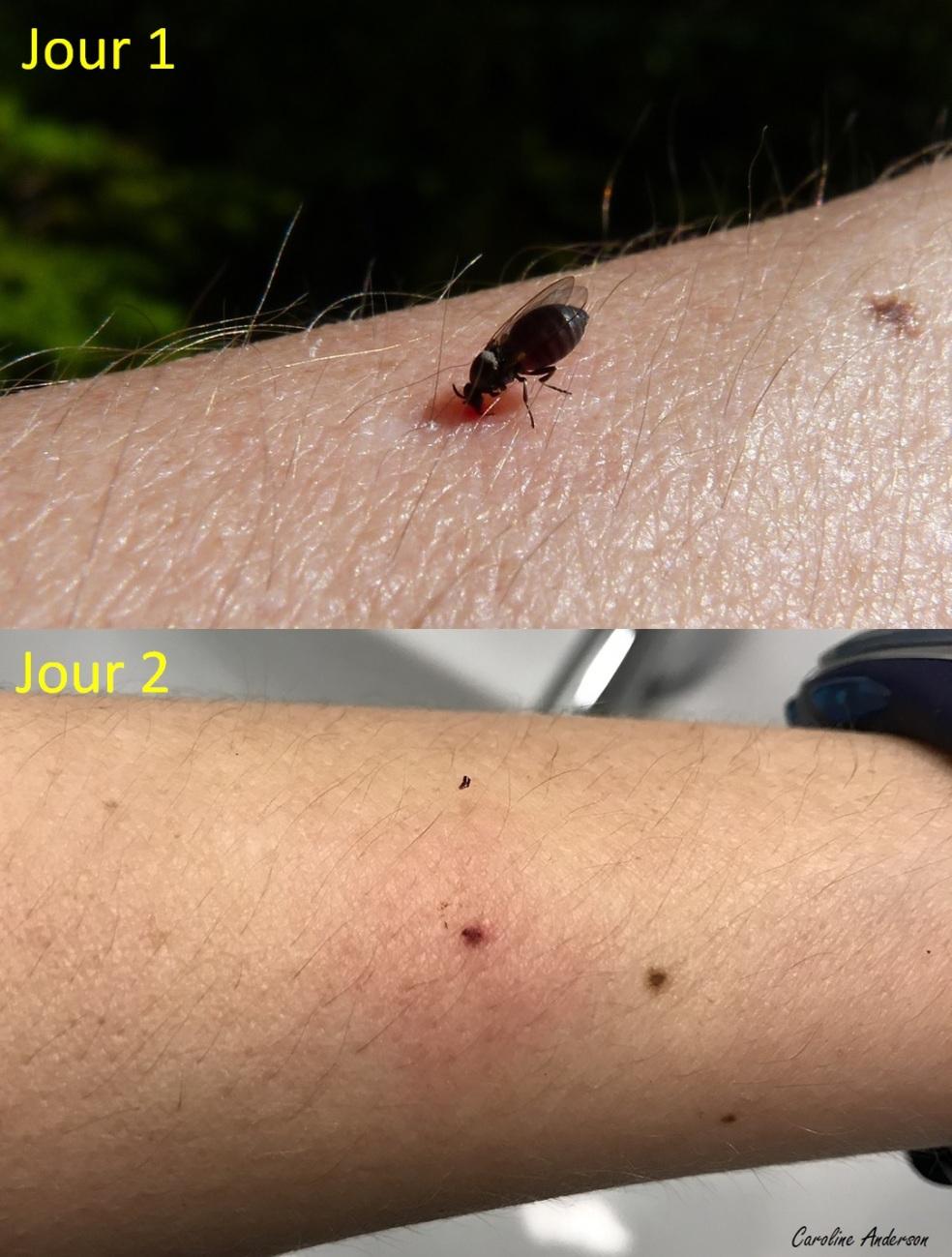 Piqure_Simuliidae_Jour1-2_Bras